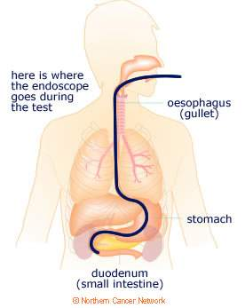 upper_endoscopy_map